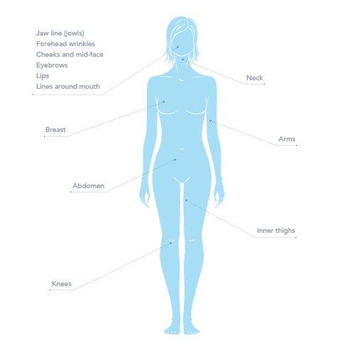 Thread Lift Procedures, You Cosmetic Medicine | Cosmetic Medicine Mosman NSW